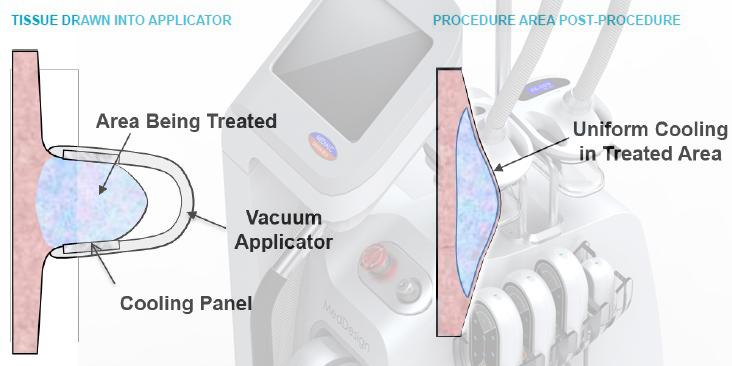 Cryolipolysis+Lipo Laser-LCR-01